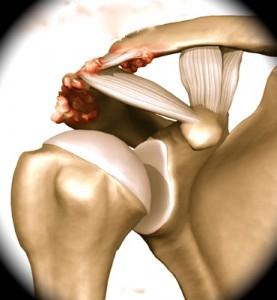 Artrose Acrômio-Clavicular