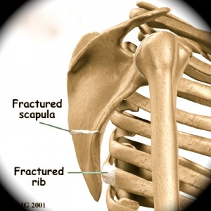 As fraturas de arcos costais e de Escápula podem ser causas de Ressalto da Escápula