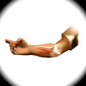 Local de dor junto ao epicondilo medial onde há degeneração do tendão