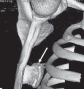 Imagem de reconstrução tomográfica em 3D da escapula mostrando a presença de um osteocondroma