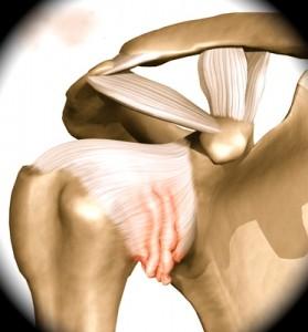 Retração da cápsula no recesso axilar- característica do ombro congelado