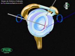 Clique aqui para ver animação da reparação de Bankart artroscópica