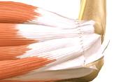 Transposição do nervo ulnar de posterior para anterior